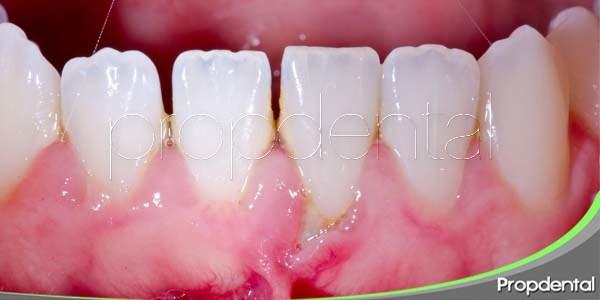 Pérdida dental a causa de la piorrea