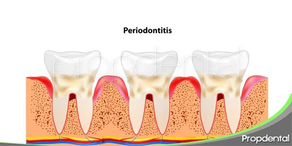 Prevenir las enfermedades periodontales
