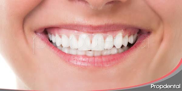 Razones para mejorar la estética de nuestra boca