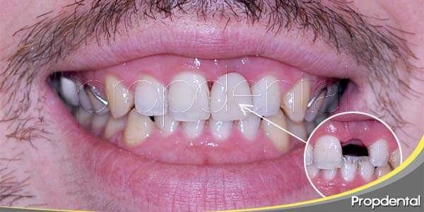 Sustituir la pérdida de un diente mediante implante