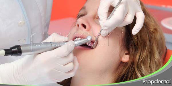 Tipos de limpieza dental profesional