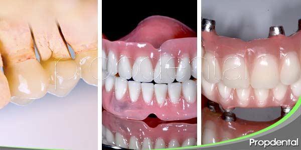 Variedades de prótesis dentales