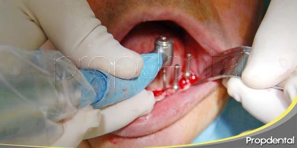 Ventajas del implante de carga inmediata