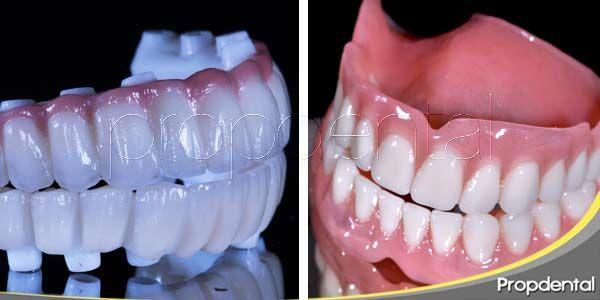 Ventajas del implante sobre la dentadura postiza