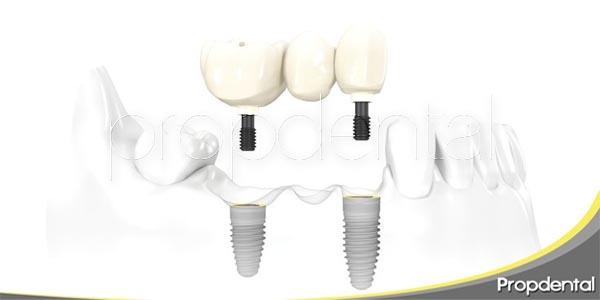 ¿Cómo cuidar los puentes dentales?