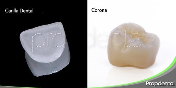 Diferencias entre carilla dental y corona