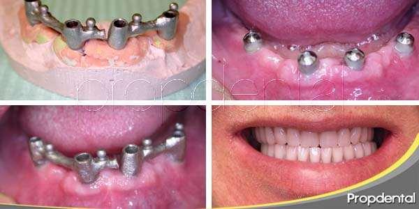 Fases del tratamiento de implantes dentales
