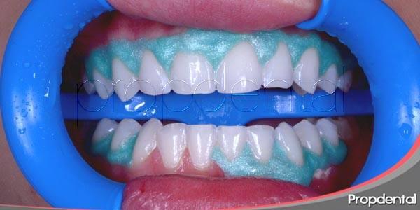 Indicaciones y respuestas sobre el blanqueamiento dental