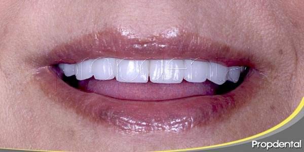 La experiencia de llevar implantes dentales