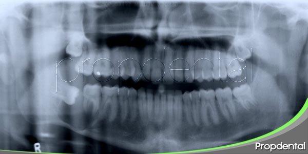 Las muelas del juicio, los dientes más importantes de los adultos