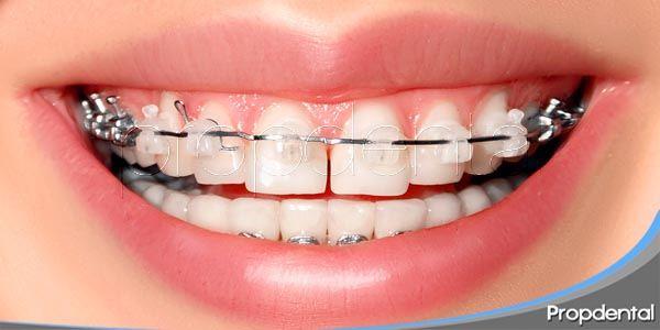 Los brackets de zafiro en el campo de ortodoncia