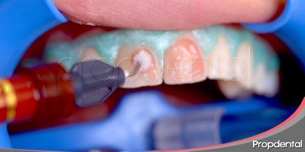 Los riesgos del blanqueamiento dental