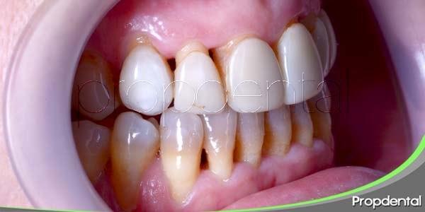 Motivos para tratar la recisión gingival