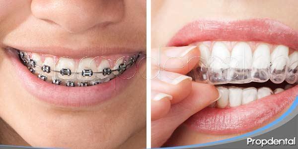 ¿Ortodoncia fija u ortodoncia removible?