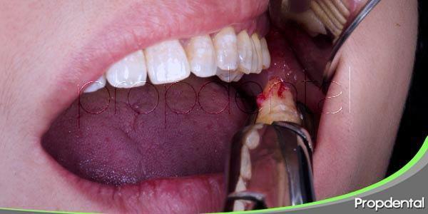 Pérdida dental debido a la caries