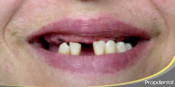 ¿Por qué perdemos piezas dentales?