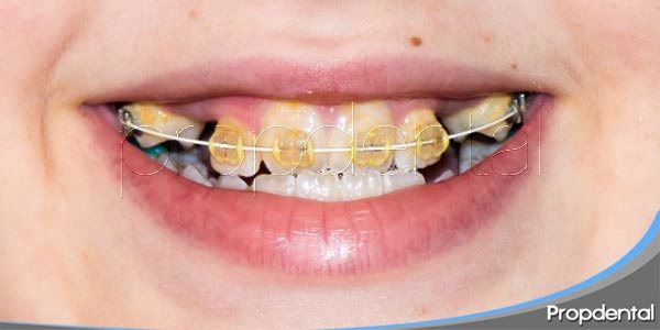 Proceso de Ortodoncia con extracciones