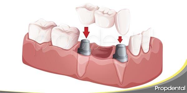 Restauraciones: El sistema de puentes dentales