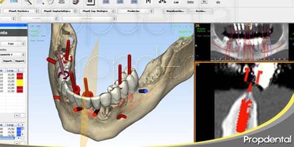 Tecnologías de la implantología dental