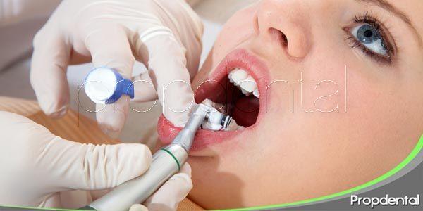 Beneficios de la limpieza dental profesional