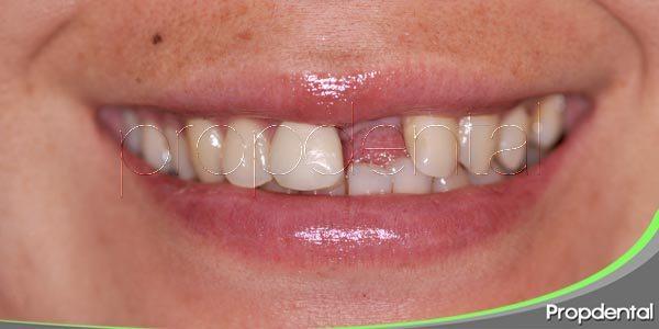Causas de la pérdida de dientes