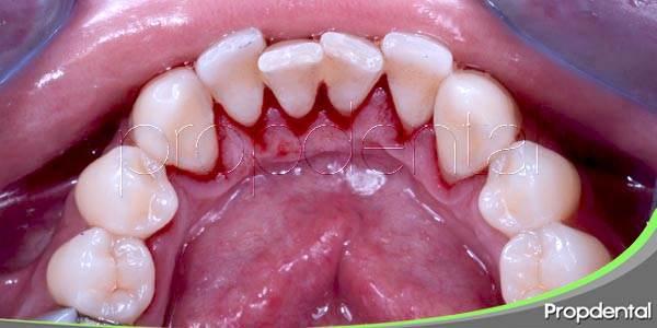 ¿Cómo podemos frenar el sangrado de las encías?