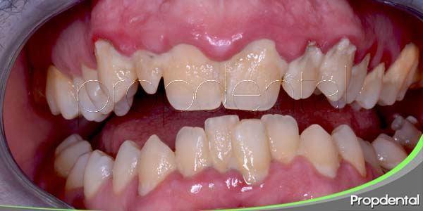 ¿Cómo sé si tengo enfermedad de las encías?