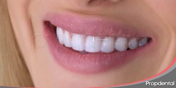 Consejos para una sonrisa radiante
