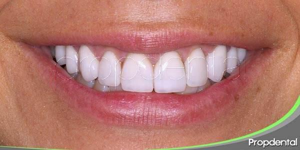 Corregir la alineación dental mediante carillas