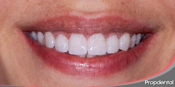 El mantenimiento de las carillas dentales