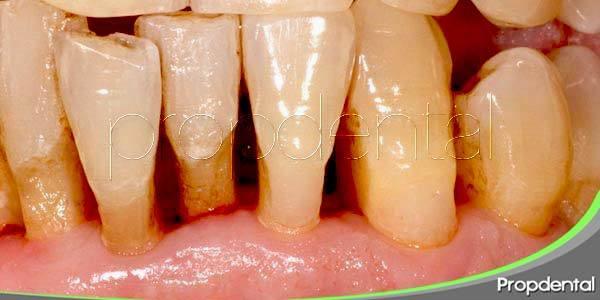 Enfermedad periodontal: Fases del tratamiento