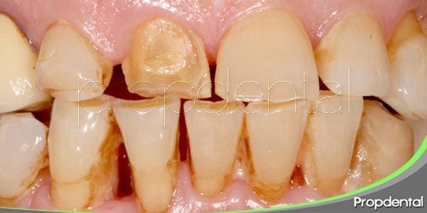 Erosión dental: ¿Se puede evitar?
