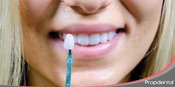 Estética dental en la actualidad