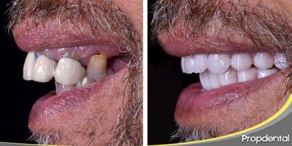 Implante como solución a la pérdida dental