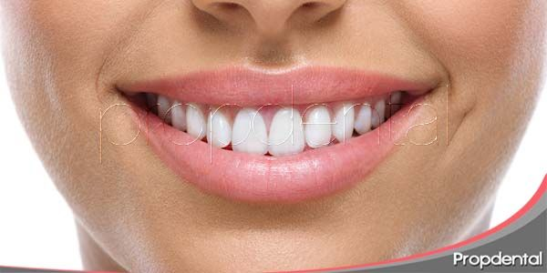 La obsesión de tener unos dientes blancos