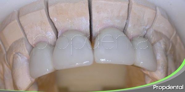 La utilidad del zirconio en odontología