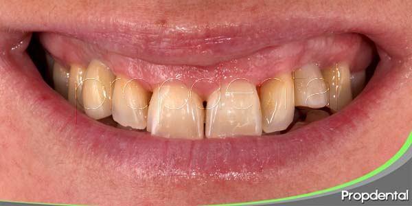 Motivos por los que se tiñe la dentición