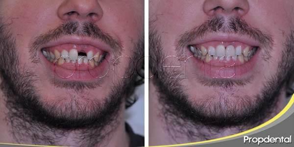 ¿Por qué es tan importante restaurar un diente perdido?