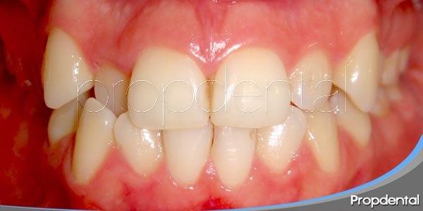 ¿Qué causa la malposición en los dientes?