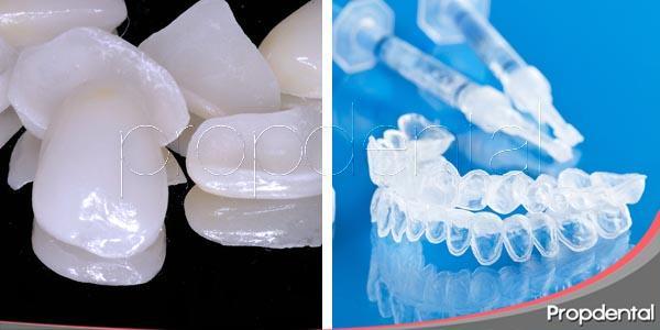 ¿Qué tratamiento escoger: carillas o blanqueamiento dental?