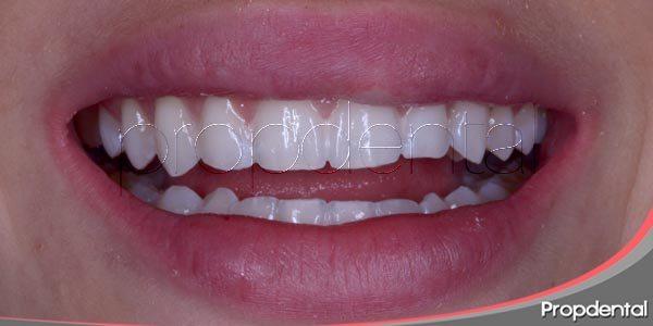 Razones para mejorar la estética dental