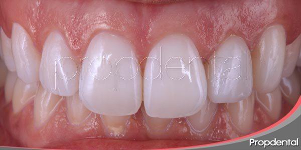 Recuperar la estetica dental gracias a las carillas