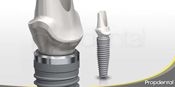 Respuestas a todo lo que quieres saber sobre los implantes dentales