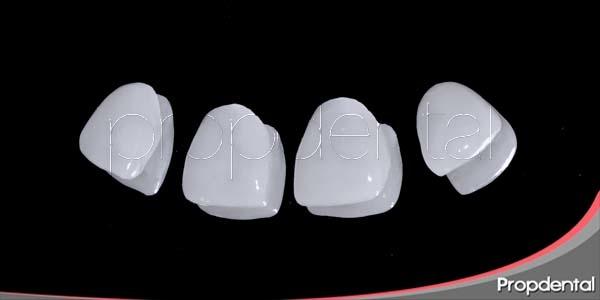 Variedades de carillas dentales: Las carillas Lumineers