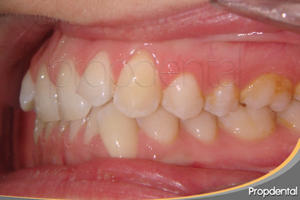 mordida profunda ortodoncia