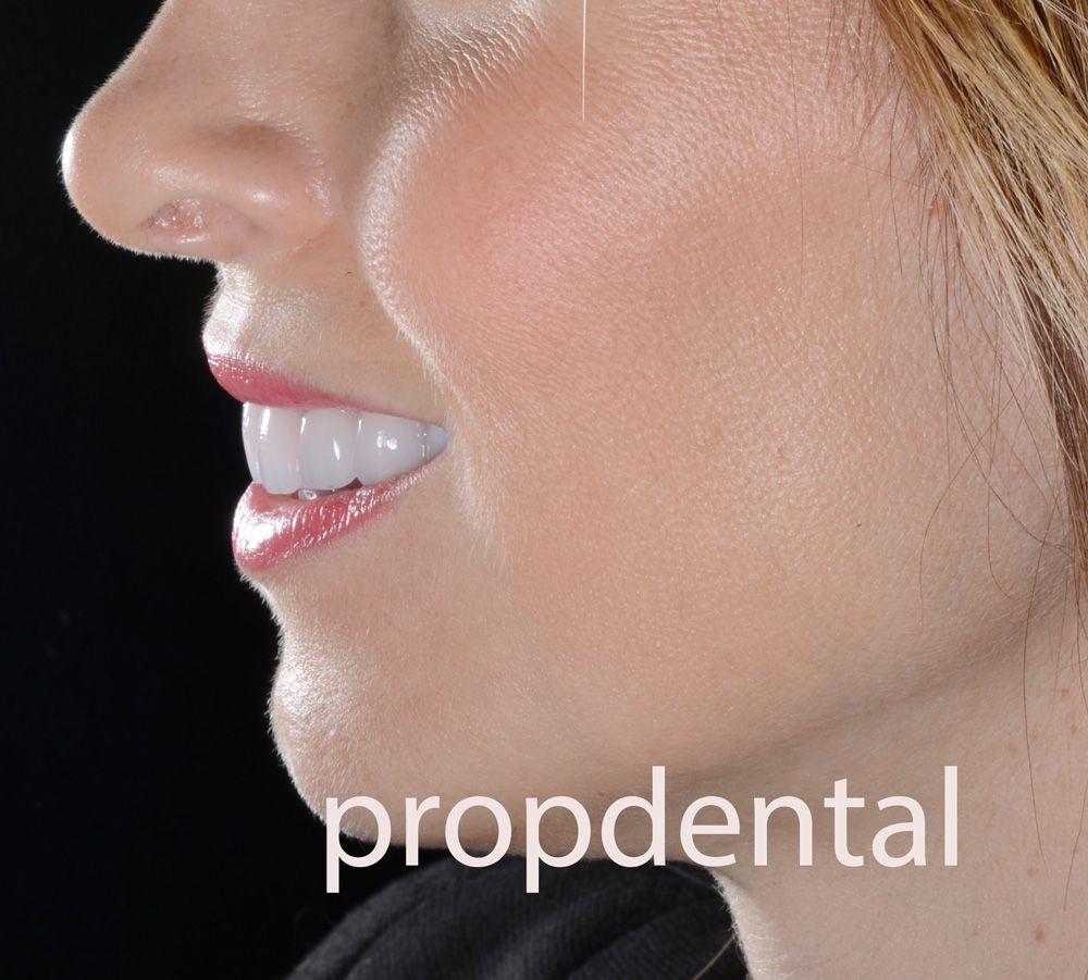 que cuidados necesita un implante dental