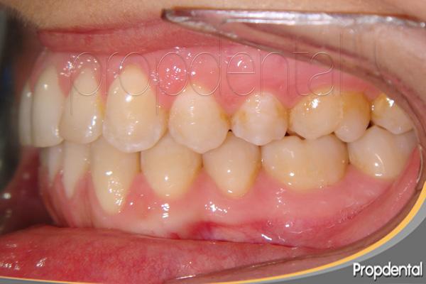 tratamiento por ortodoncista barcelona