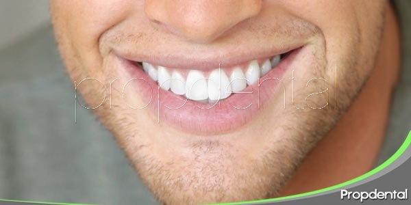 ¿A quién no le gustaría lucir una sonrisa radiante?