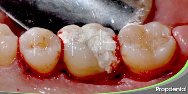 Alargando la corona dental