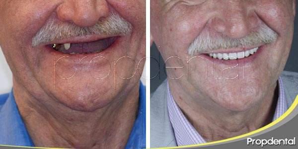 Alternativas para recuperar la dentición completa